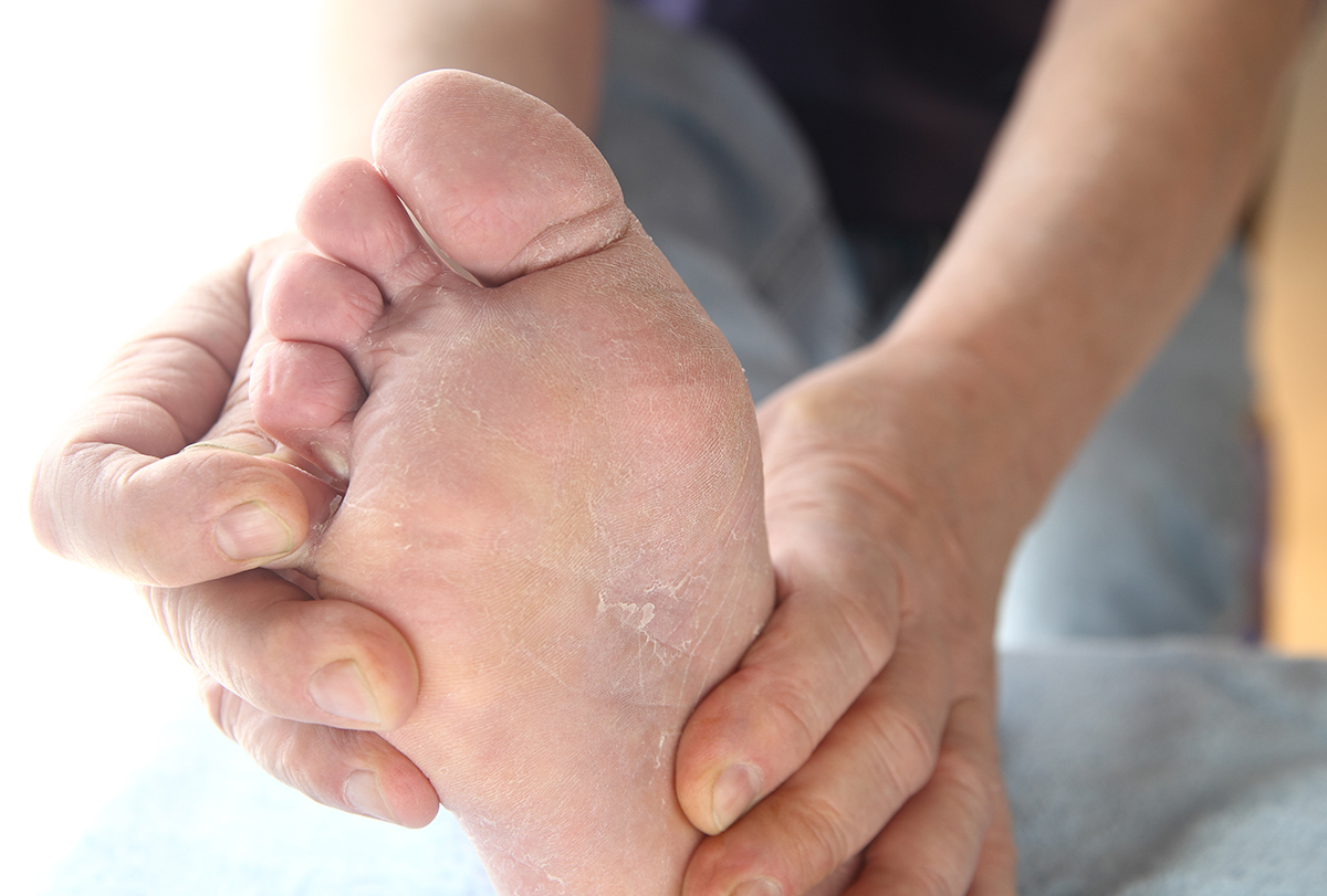 Some Of The Vital Tips To Follow To Deal With The Fungal Infection